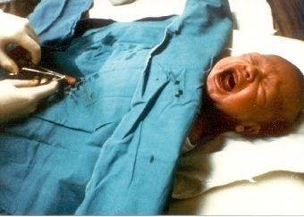 circumcision_screaming_baby